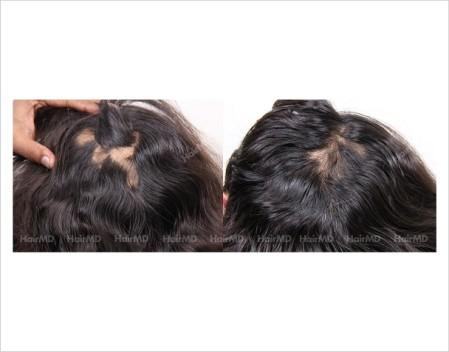 Alopecia-areata-before-after-female-7