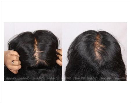 Alopecia-areata-before-after-female-9