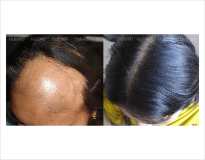 Alopecia-areata-female-scalp-before-after-result-17