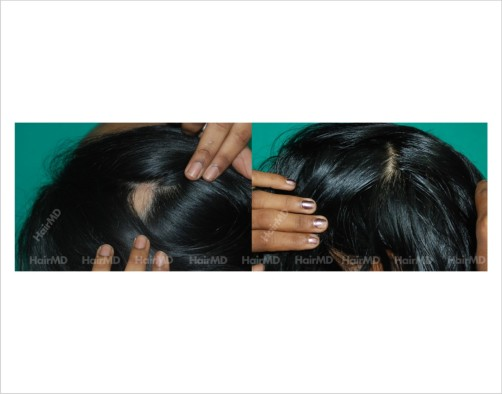 Alopecia-areata-female-scalp-before-after-result-25