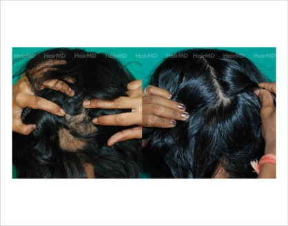 Alopecia-areata-female-scalp-before-after-result-26