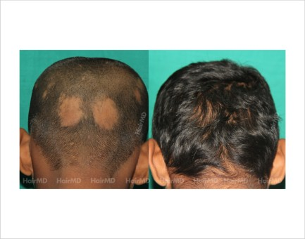 Alopecia-areata-male-bald-patch-before-after-result-38