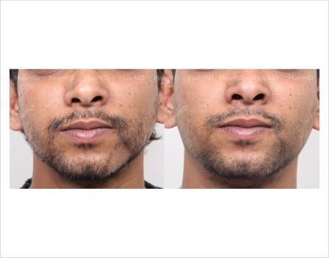 Alopecia-areata-male-beard-before-after-12