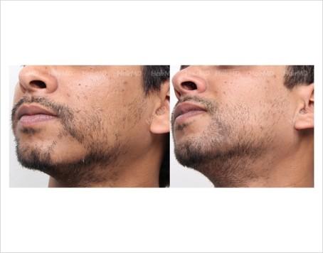 Alopecia-areata-male-beard-before-after-13