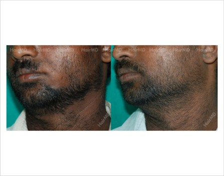 Alopecia-areata-male-beard-before-after-result-21