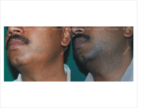 Alopecia-areata-male-beard-before-after-result-24