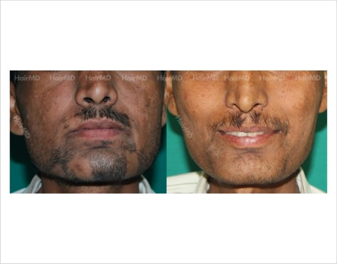 Alopecia-areata-male-beard-before-after-result-30
