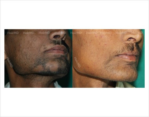 Alopecia-areata-male-beard-before-after-result-31
