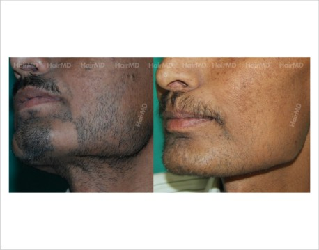 Alopecia-areata-male-beard-before-after-result-32