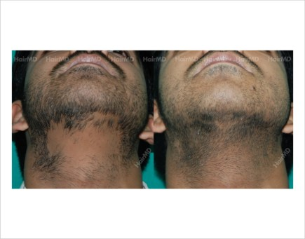 Alopecia-areata-male-chin-before-after-result-27