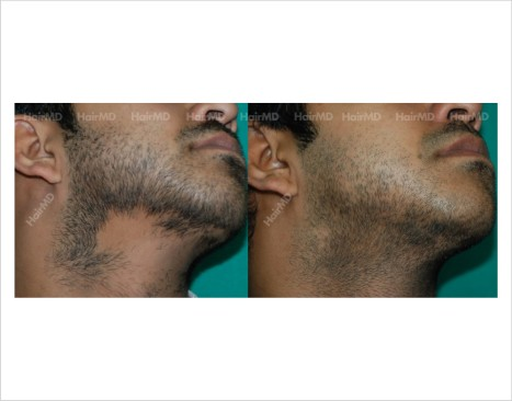 Alopecia-areata-male-chin-before-after-result-28