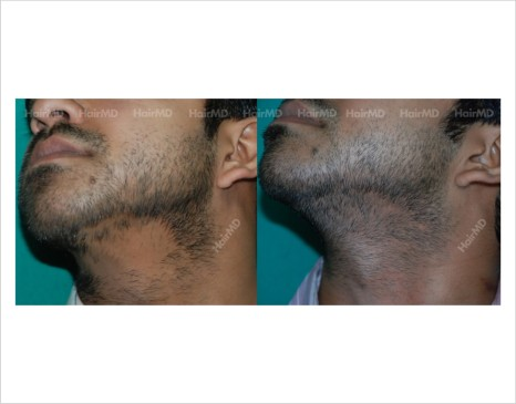 Alopecia-areata-male-chin-before-after-result-29