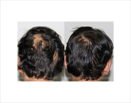 Alopecia-areata-male-scalp-before-after-14