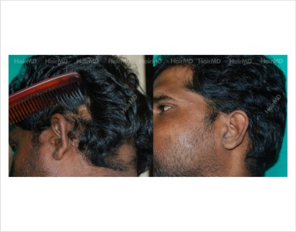 Alopecia-areata-male-scalp-before-after-result-23