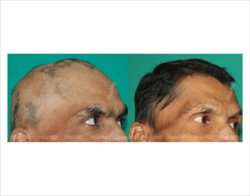 Alopecia-totalis-male-scalp-before-after-result-33