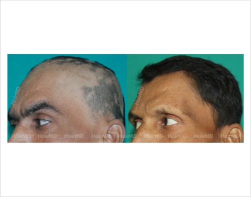 Alopecia-totalis-male-scalp-before-after-result-34