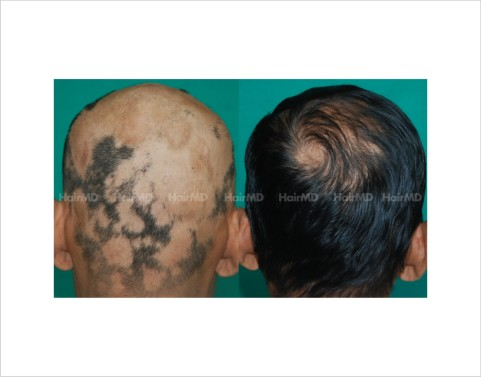 Alopecia-totalis-male-scalp-before-after-result-36