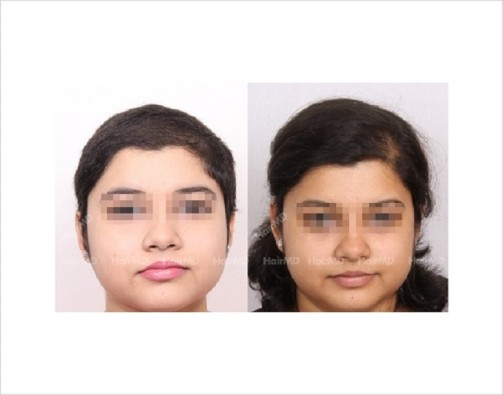 Female-Hair-Loss-before-and-after-result-1