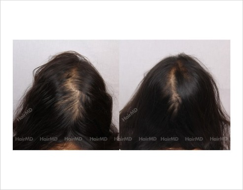 Female-Hair-Loss-before-and-after-result-12