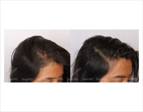 Female-Hair-Loss-before-and-after-result-15