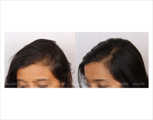 Female-Hair-Loss-before-and-after-result-16