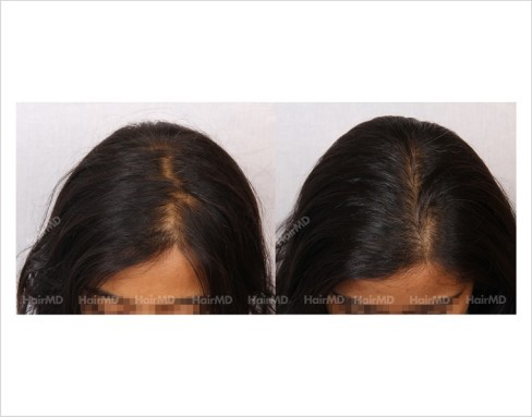 Female-Hair-Loss-before-and-after-result-17