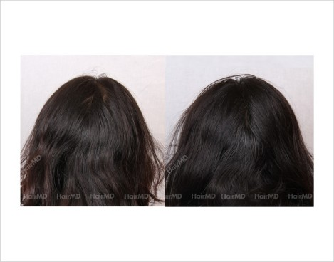 Female-Hair-Loss-before-and-after-result-18