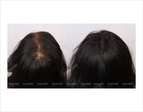 Female-Hair-Loss-before-and-after-result-19