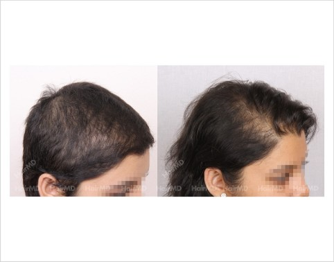 Female-Hair-Loss-before-and-after-result-2