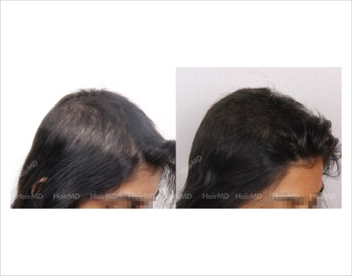 Female-Hair-Loss-before-and-after-result-21