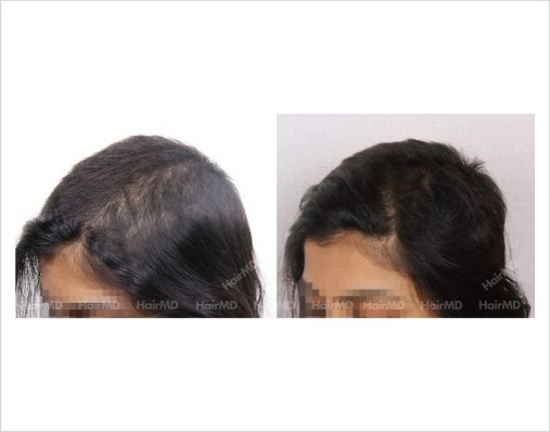 Female-Hair-Loss-before-and-after-result-22