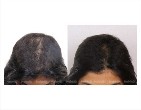 Female-Hair-Loss-before-and-after-result-23