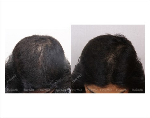 Female-Hair-Loss-before-and-after-result-24
