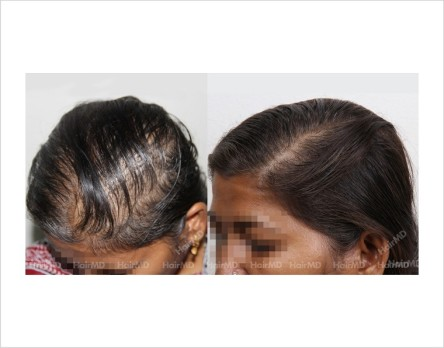 Female-Hair-Loss-before-and-after-result-29