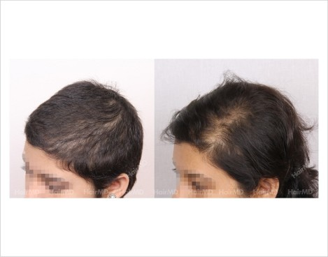 Female-Hair-Loss-before-and-after-result-3