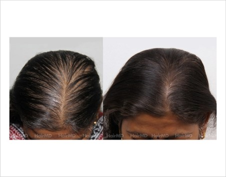 Female-Hair-Loss-before-and-after-result-30