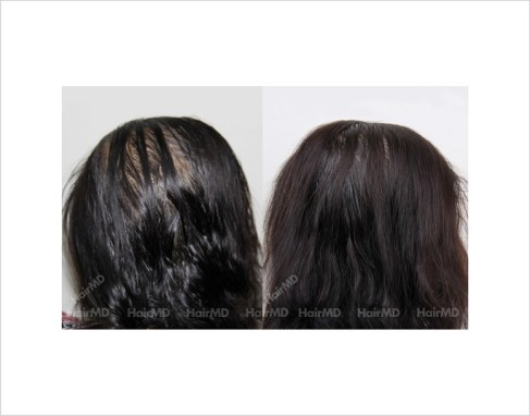 Female-Hair-Loss-before-and-after-result-31