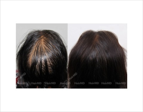 Female-Hair-Loss-before-and-after-result-32