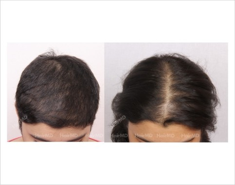 Female-Hair-Loss-before-and-after-result-4