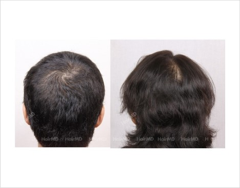 Female-Hair-Loss-before-and-after-result-5