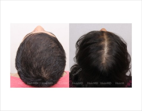 Female-Hair-Loss-before-and-after-result-6