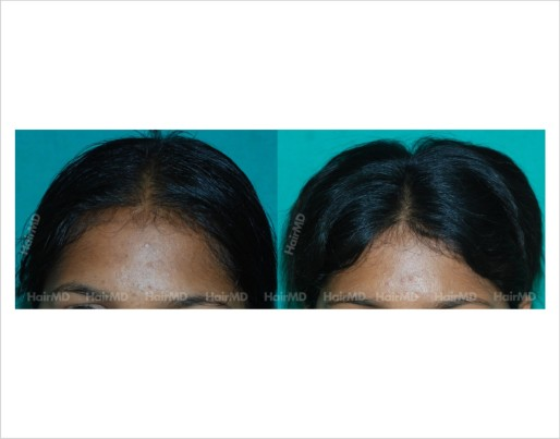 Female-hair-loss-before-after-result-35