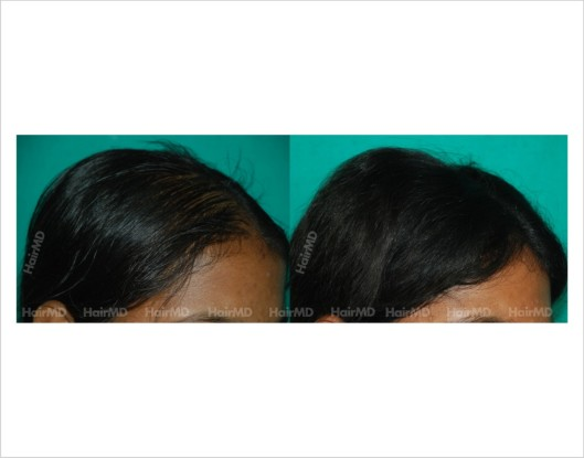 Female-hair-loss-before-after-result-36