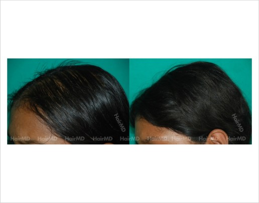 Female-hair-loss-before-after-result-37