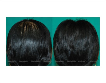 Female-hair-loss-before-after-result-38