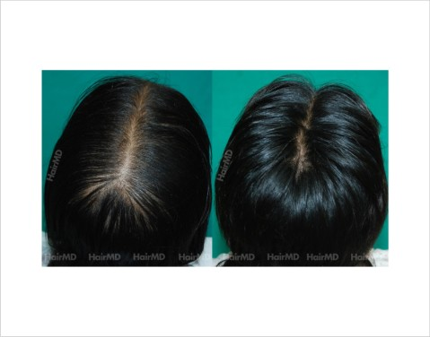 Female-hair-loss-before-after-result-40