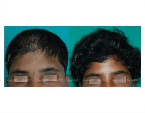 Female-hair-loss-before-after-result-41