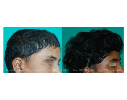 Female-hair-loss-before-after-result-42