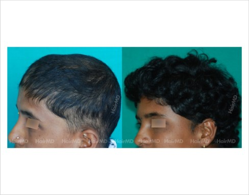 Female-hair-loss-before-after-result-43