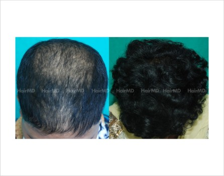 Female-hair-loss-before-after-result-44